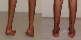 Adult Foot Deformities